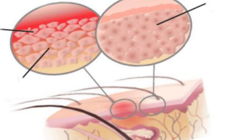 Что провоцирует дерматит