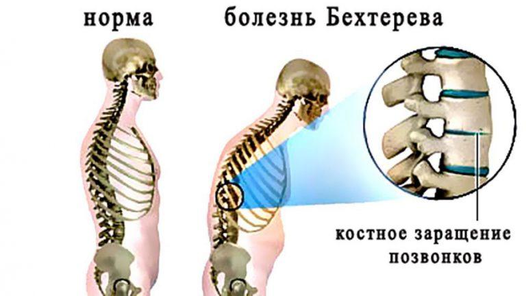 Полное описание болезни Бехтерева: симптомы, причины и терапия