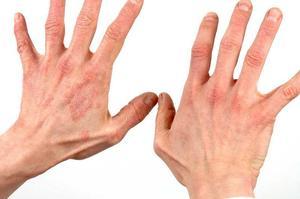 Грибок на руках лечение