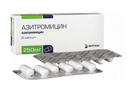 Лечения антибиотиками избежать не удастся