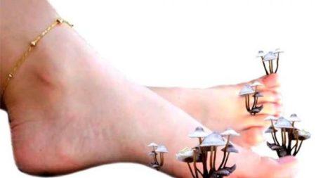 Повышенное потоотделение ног у женщин