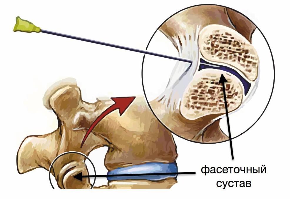 Фасеточный синдром: последствия патологических изменений в межпозвонковых суставах. Группы риска