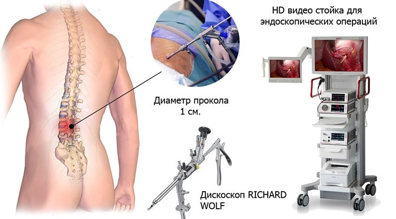 Современный метод избавления от боли: эндоскопическое удаление грыжи позвоночника