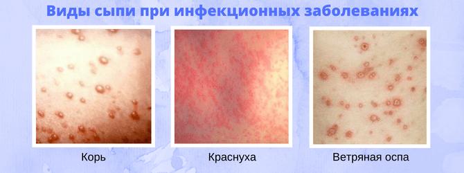 Виды сыпи при инфекционных заболеваниях