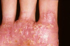 Диагностика и лечение дисгидротического дерматита