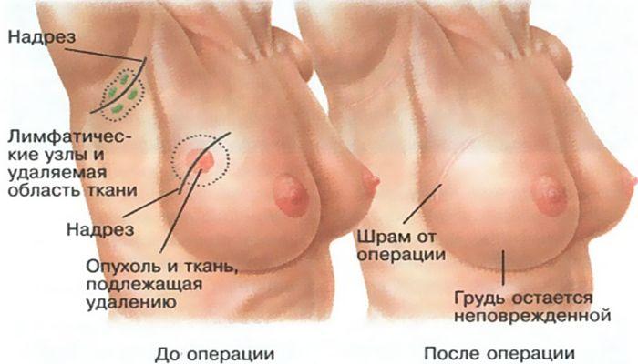 Рак груди после операции