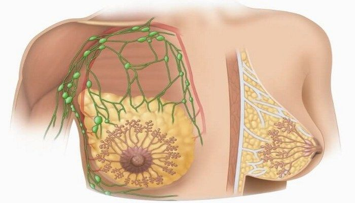 Какие лимфоузлы в молочной железе бывают раком