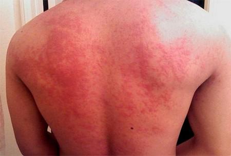 Острое проявление аллергии