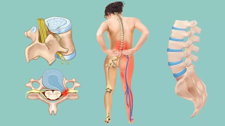 Чем опасна межпозвоночная грыжа при отсутствии лечения и неправильном образе жизни?