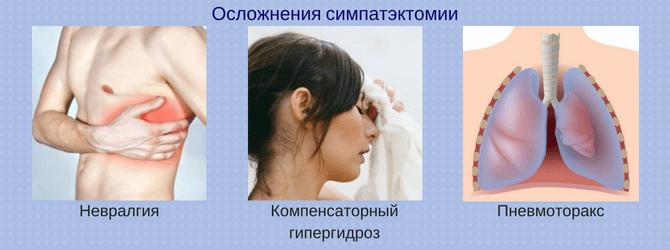 Осложнения симпатэктомии