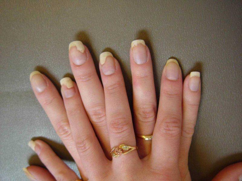 Чем лечить грибок ногтей
