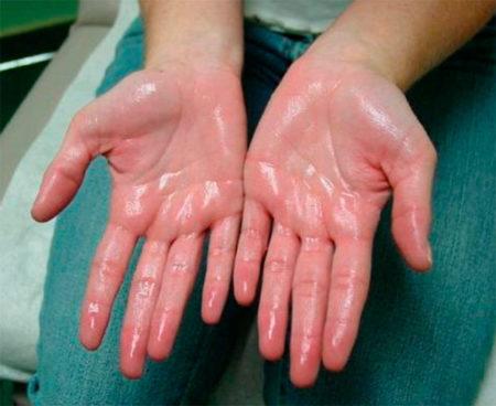 Если сильно потеют руки