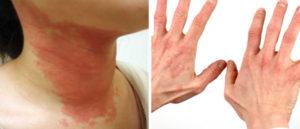 лечение токсико-аллергического дерматита