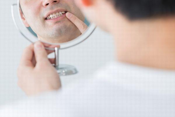 кариес между зубами 2