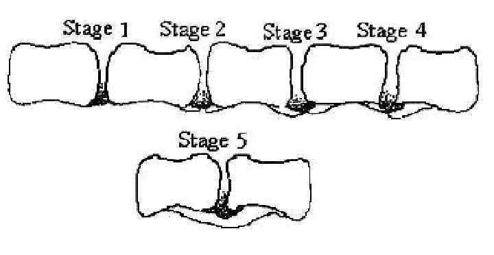 Начальные проявления деформирующего спондилоартроза. Почему необходимо незамедлительное лечение патологии?