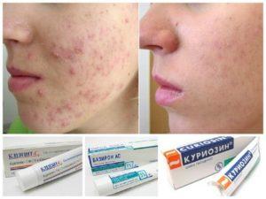 Какой крем выбрать от угревой сыпи на лице