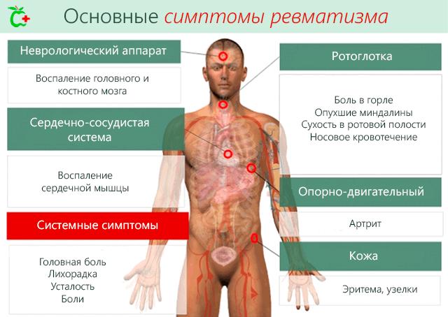 Симптомы ревматизма суставов