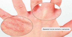 Причины простого контактного дерматита