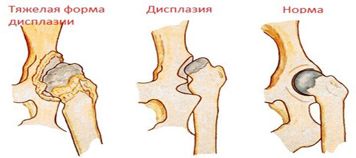 Патология тазобедренного сустава