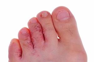 Основные формы грибка ног