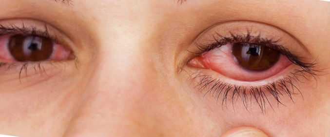Почему чешутся глаза от наращивания