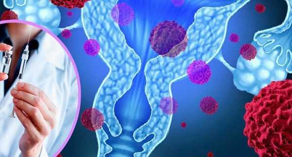 Вирус папилломы человека: как передаётся женщине