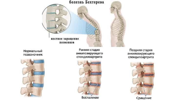 Болезнь Бехтерева: коварные изменения в суставах позвоночника, ведущие к инвалидности