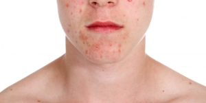 лечение лечение угревой сыпи у женщин