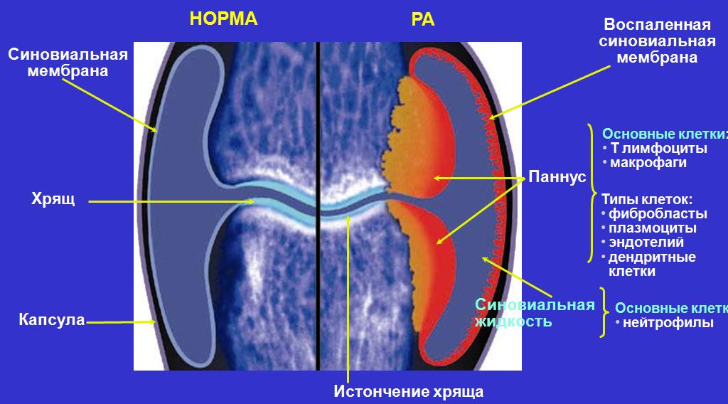 Состояние сустава при артрите