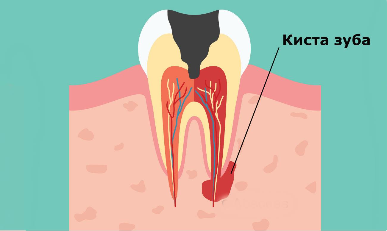 Как вылечить кисту зуба дома народными средствами