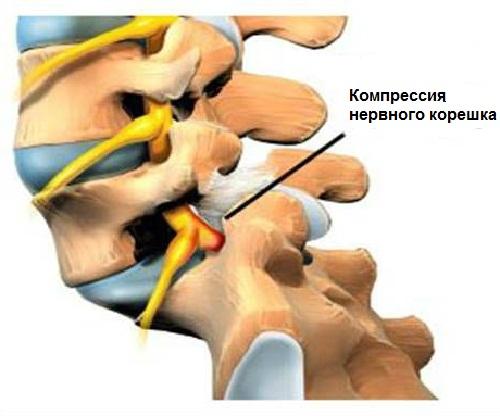 Мази от растяжения связок и мышц голеностопного сустава