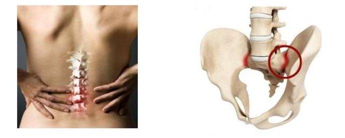 Псориатический спондилит как последствие тяжелой формы псориаза