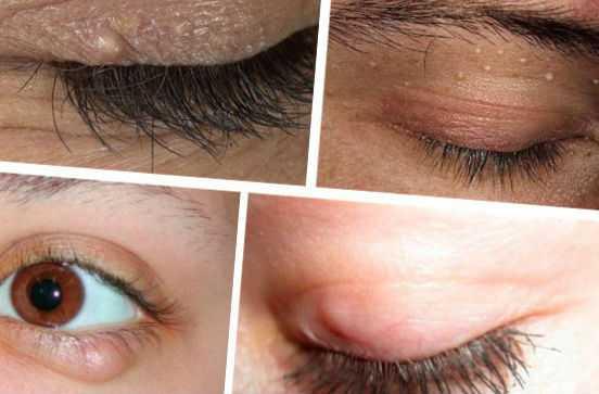 Виды жировиков под глазами