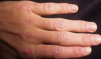 Ногти также сигнализируют о проблемах в организме