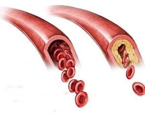 Ишемическая миелопатия или инфаркт спинного мозга: есть ли положительные прогнозы?
