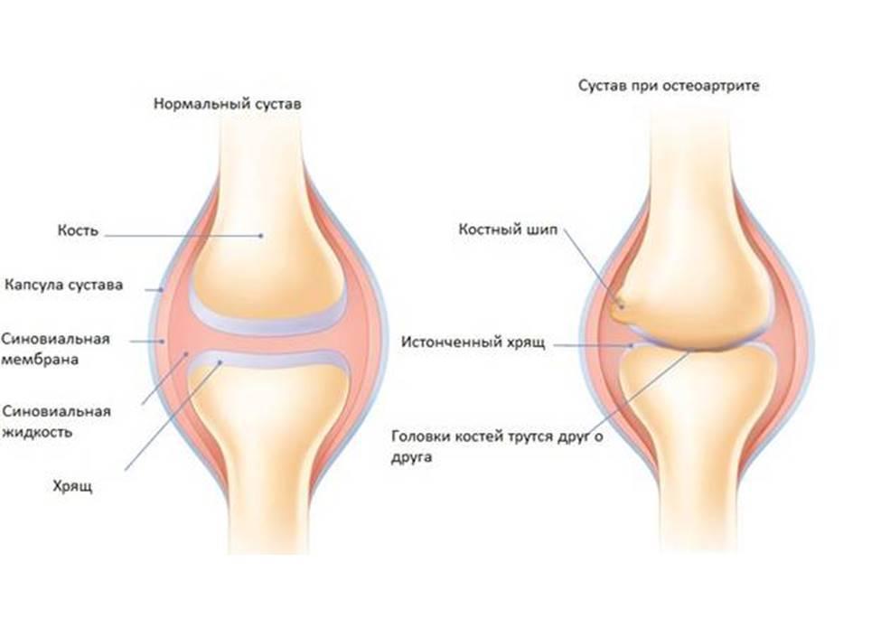 Заболевание остеоартрит