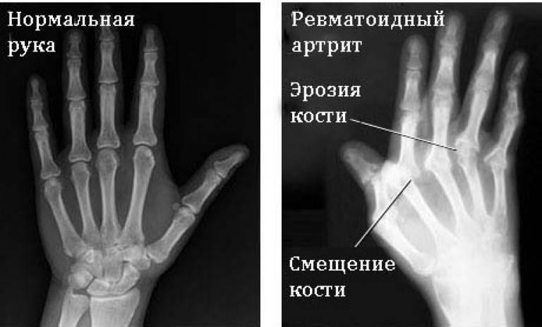 Рентген пораженной кисти