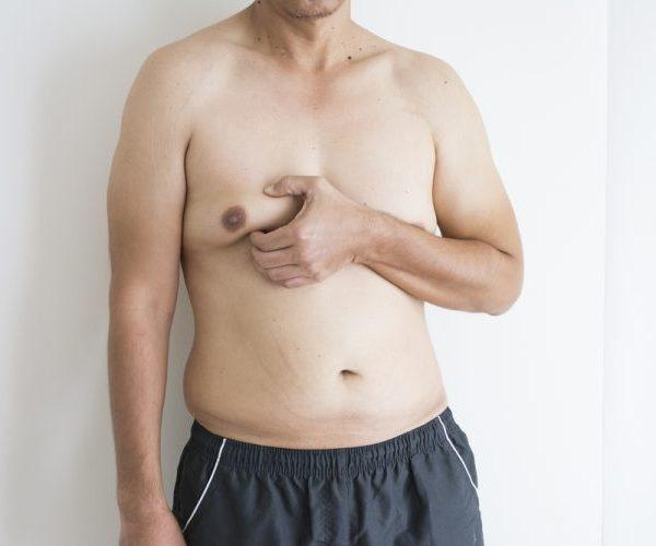 Нужна ли операция при гинекомастии