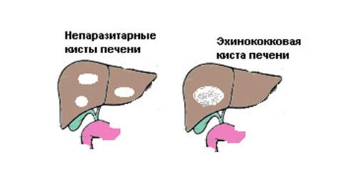 Виды паразитарных кист печени
