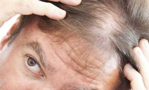 Как остановить выпадение волос у мужчин