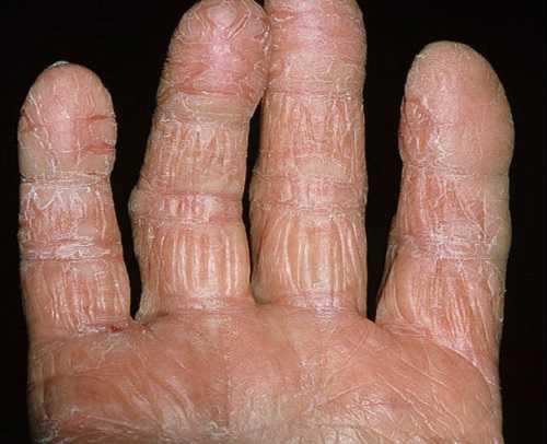 Экзема: трескается кожа на пальцах рук