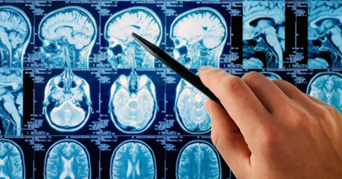 Методы лечения ликворной кисты в мозге