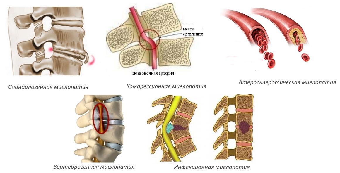 Миелопатия грудного отдела позвоночника: как избежать серьезных последствий опасного поражения спинного мозга?