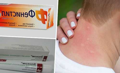 Средства от кожной аллергии у взрослых