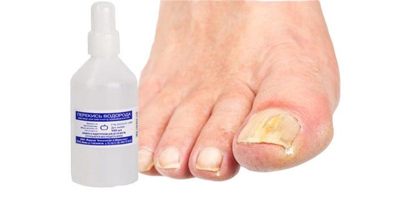 Лечение перекисью водорода грибка ногтей