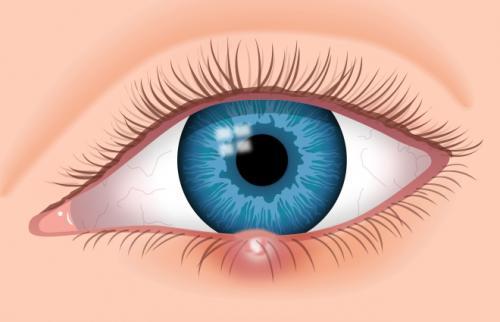 Лечение кисты на веке глаза