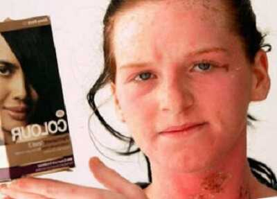 Аллергия у взрослых на краску. Лечение аллергии