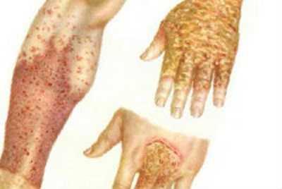 Симптомы и виды экземы на руках