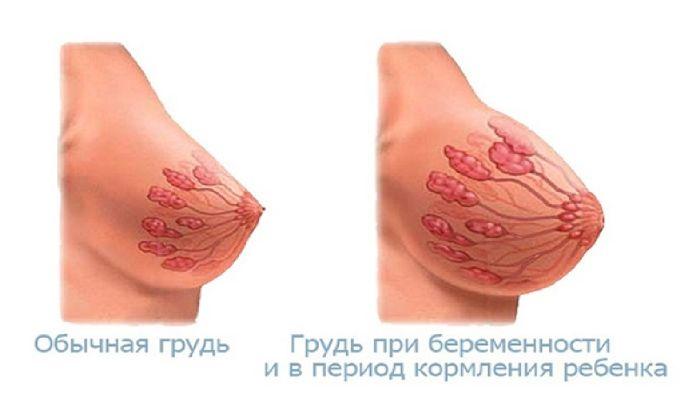 Набухание молочной железы