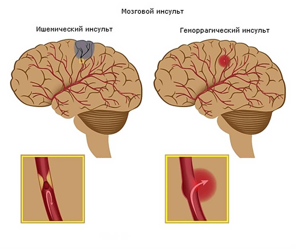 Мозговые инсульты